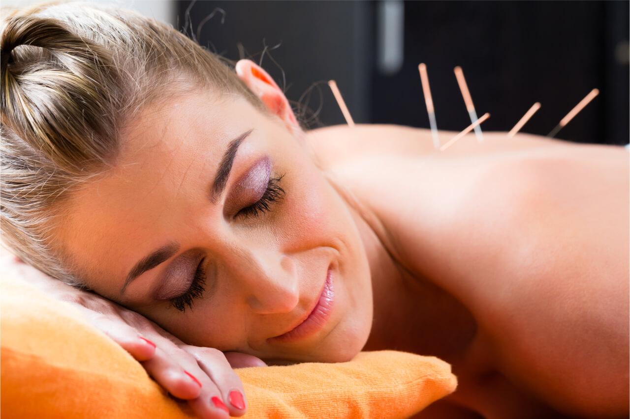 acupuncture patient