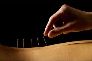 inserting needles