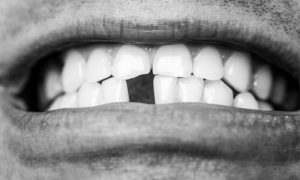 A missing tooth at the frontal row.
