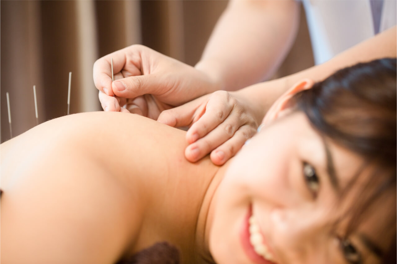 acupuncture for your pain